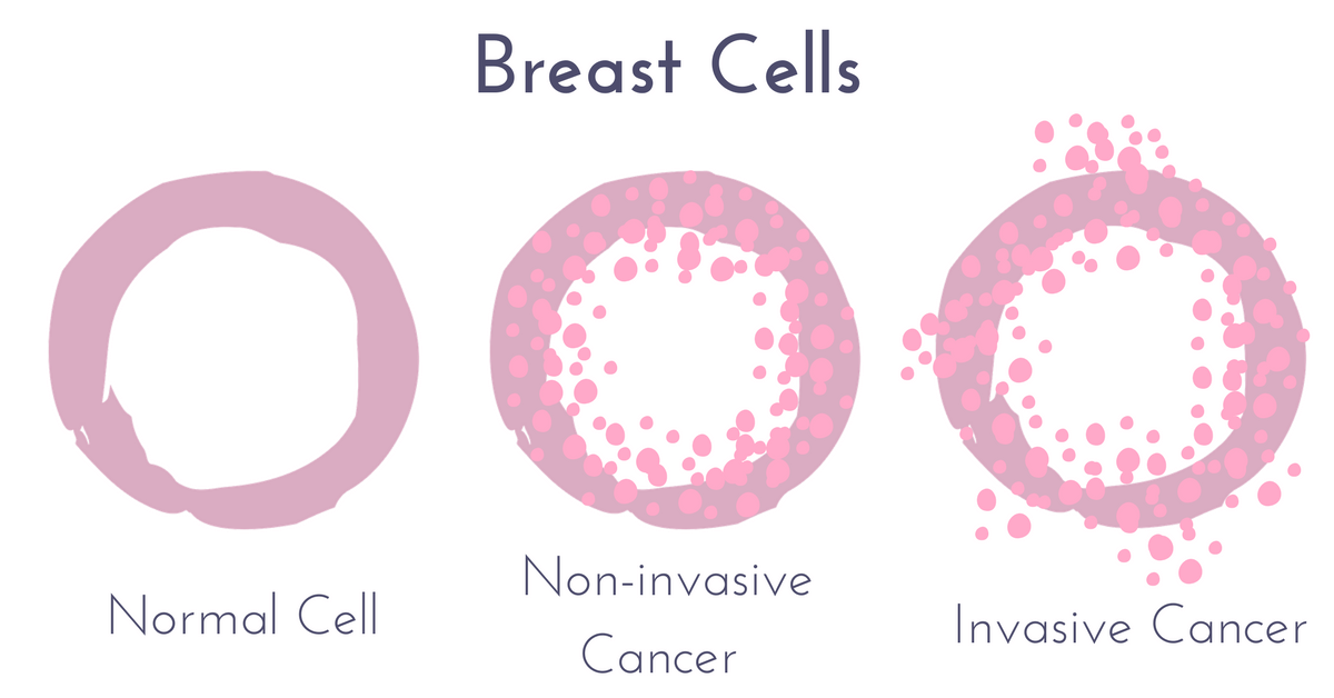 what does invasive mean in breast cancer