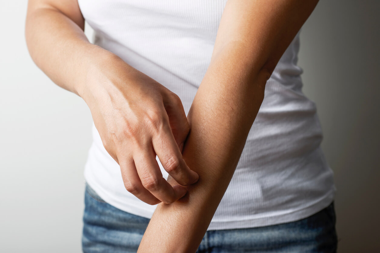 woman with possible zinc deficiency scratching her arm